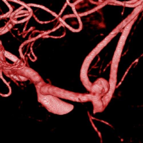Digitale Subtraktionsangiographie eines Aneurysma des vorderen Kreislaufes