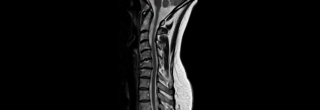 MRT der Halswirbelsäule in T2 Gewichtung und in seitlicher Aufnahme. Ersichtlich die Fehlstellung der HWS und die Bandscheibenvowölbungen.