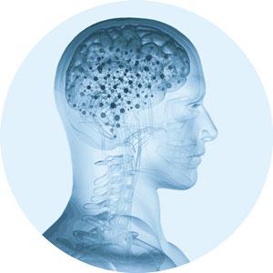 Neurochirurgie Innsbruck Dr. Claudia Unterhofer